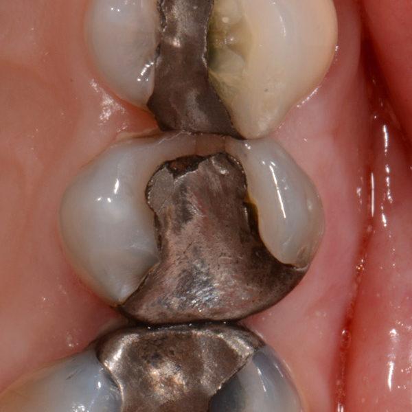 Westland, MI Dentist Digital Dental Photography