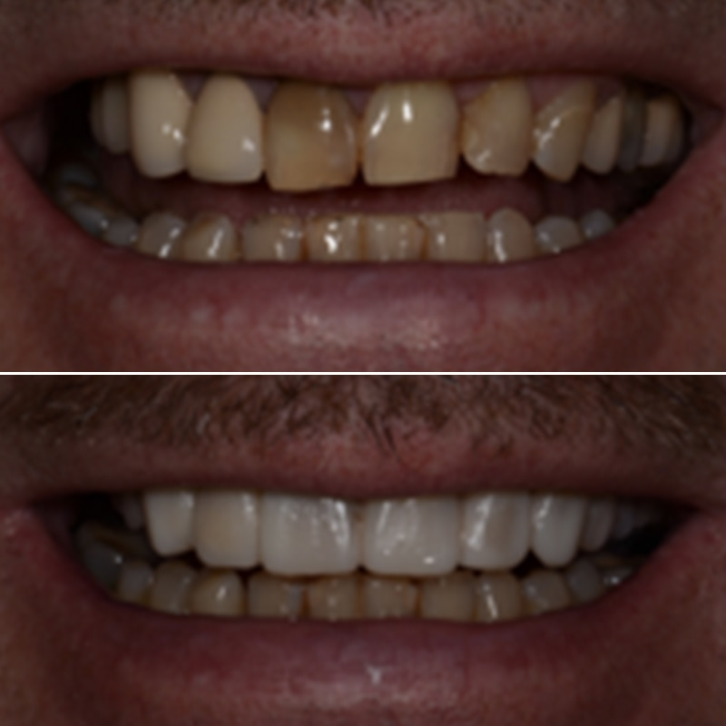Cosmetic Dentist Westland MI Before After Photo