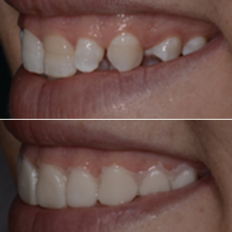 Cosmetic Dentist Westland MI Before After Photos