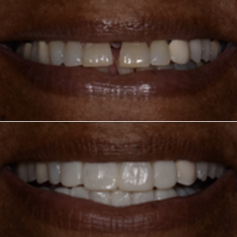 Cosmetic Dentist Westland MI Before After