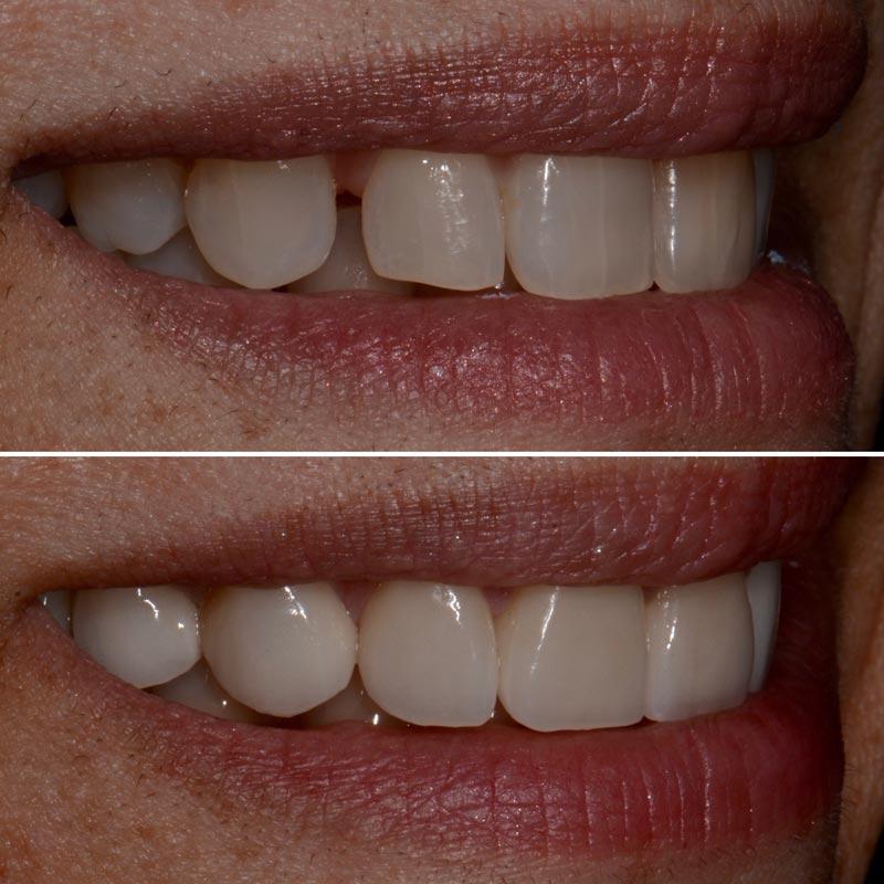 Veneers Dentist Westland, MI